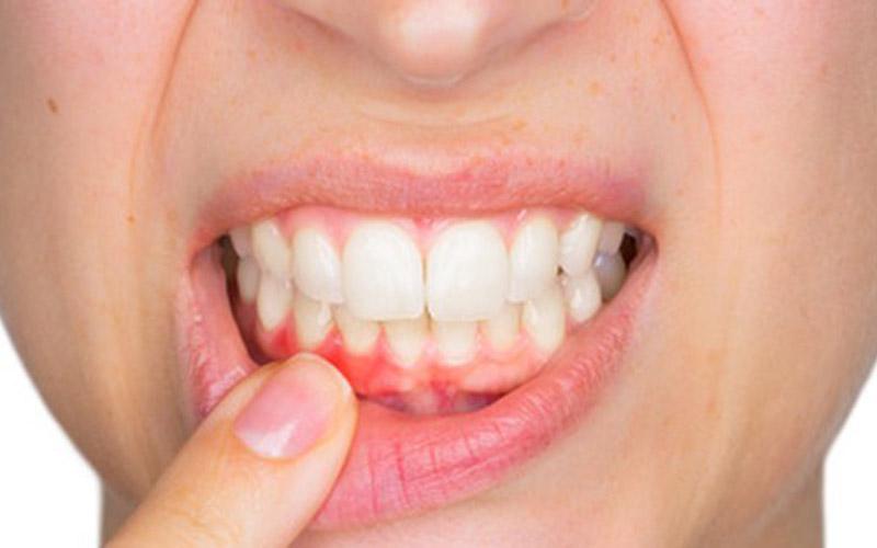 7 häufige Ursachen von Zahnschmerzen
